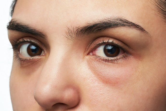 Top 10 Best Concealer For Dark Circles In 2020 (Deep, Pigmentary And Vascular)