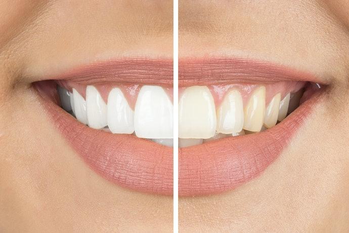 Top 10 Best Tooth Pastes Buy Online In 2020